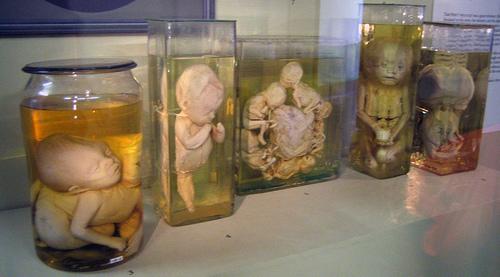 Museo-de-Historia-de-la-Medicina-Myuttera